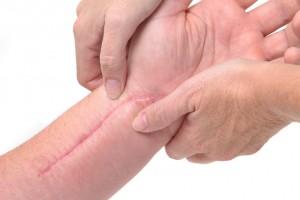 Коррекция шрамов